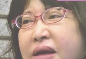 中村うさぎ病気画像